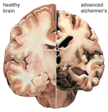 The effect of Alzheimer's disease on the brain.